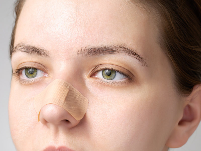 Picture of nasal resisitive device