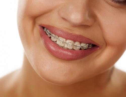 Orthodontic Treatment of OSA
