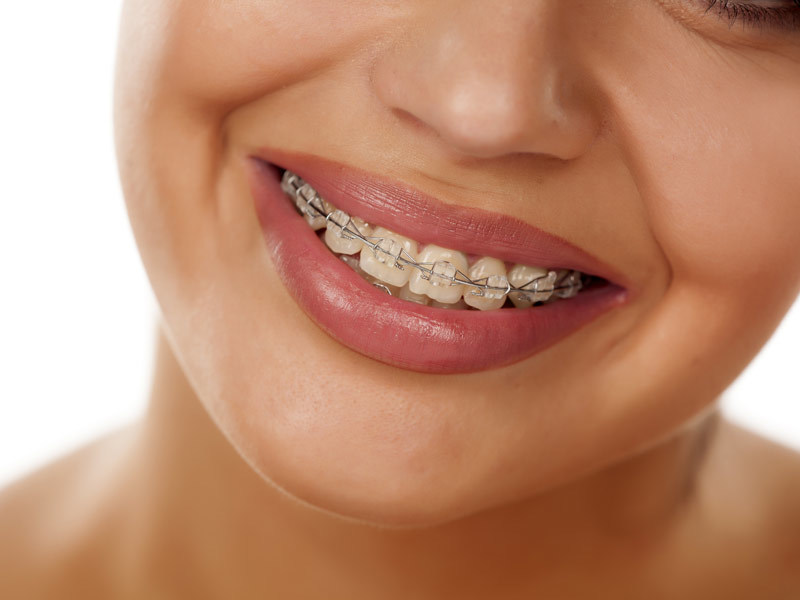 Picture of person with braces