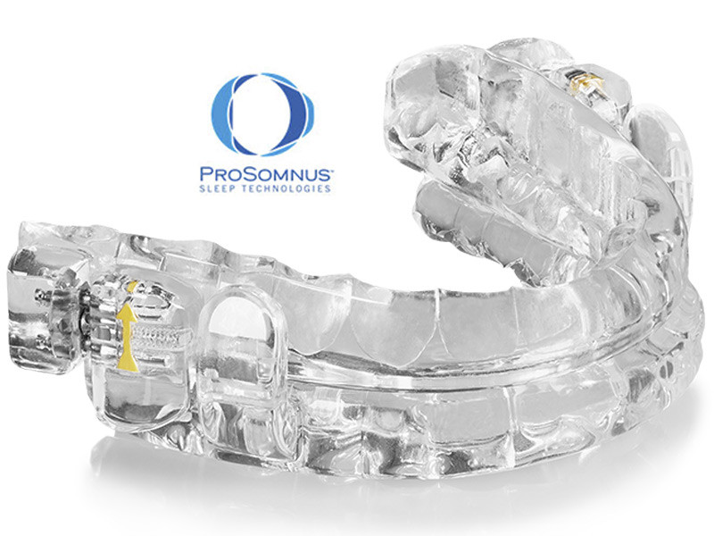 Medical Director Prosomnus Oral Appliance Image